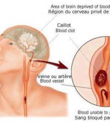 Santé pour tous/Comment reconnaître un symptôme d'AVC, tirez la langue…